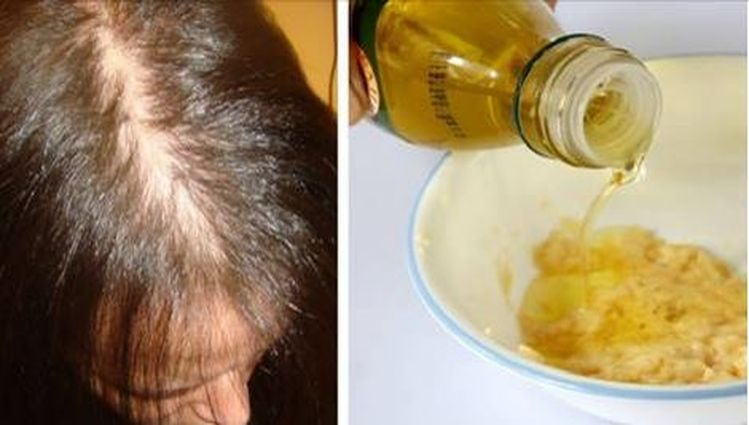jengibre-caida-cabello