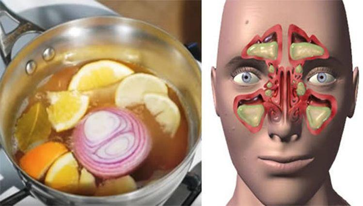 cebolla-limon-miel-gripe